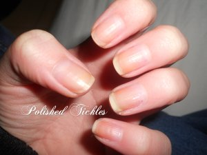 Yellow Stained Natural Nails